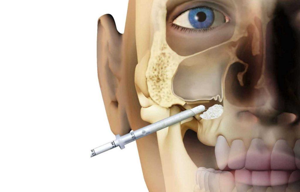 جراحی سینوس لیفت
